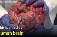 The Actual Unfixed Human Brain