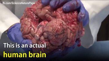 The Actual Unfixed Human Brain
