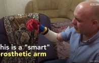 A Smart Prosthetic 3D Printed Arm