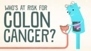 Find Out If You're At Risk For Colon Cancer