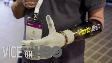 How Bionic Limbs Are Changing Lives